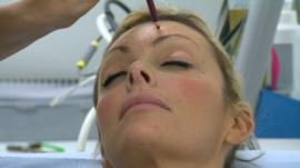 Woman being prepared for botox injection