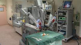 The Da Vinci robot at Southmead Hospital in Bristol demonstrates surgery on a clementine