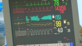 Patient monitoring screen