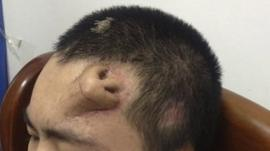 A new nose, grown by surgeons on Xiaolian