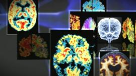 Images of brain