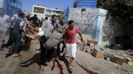 Palestinians carry a wounded man out of a UN-run school in Gaza after an Israeli attack in the area - 3 August 2014