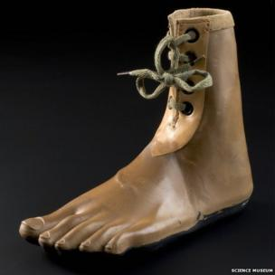A foot. Credit: Science Museum, Brought to Life exhibit