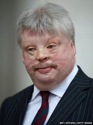 Simon Weston attends the Ceremonial funeral of former British Prime Minister Baroness Thatcher