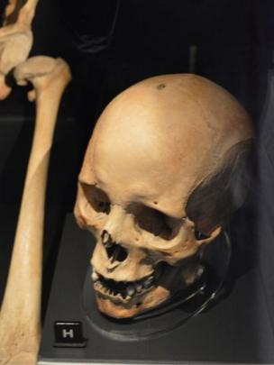 Man's skull with healed arrow wound on the top of his head