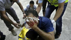 Hezbollah civil defence workers help an injured man at the scene where two explosions struck near the Iranian embassy in Beirut, Lebanon, 19 Nov