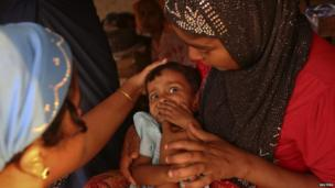Musana Khatu, a 22-month-old Rohingya girl suffering from diarrhoea for 13 days, undergoes examination after her mother brought her from the Baw Dupa camp for internally displaced people to a makeshift clinic at the Thet Kae Pyin camp in Sittwe, Rakhine state (23 April 2014)