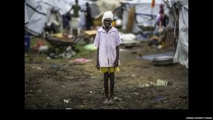 A 10-year-old Nuer boy shot in the head during an attack on Bor camp where he is pictured - Jonglei State, South Sudan