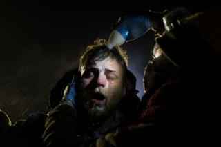 A man is treated with milk of magnesia after being pepper sprayed at the police blockade on highway 1806 near Cannon Ball, North Dakota Sunday, 20 November 2016