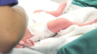 أحد التوأمين بعد ولادته مباشرة.