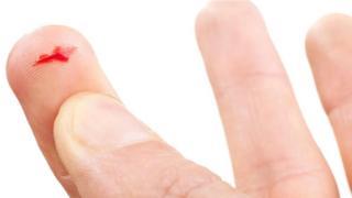 Una persona con una herida provocada por un papel en el dedo