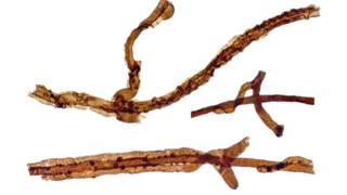Filaments of the ancient fungus