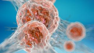 Cancer samples sought for new study