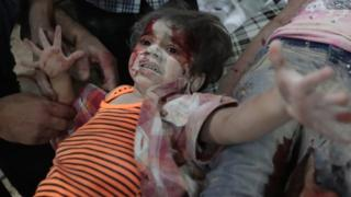A Syrian girl crying out covered in dust and blood