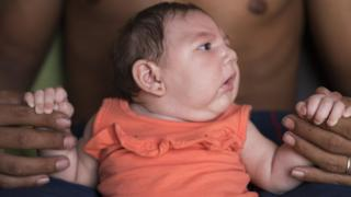 Baby with mircocephaly, linked to Zika virus