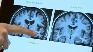 Scans of a brain with Alzheimer's (left) and a healthy brain