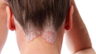 Mujer mostrando la parte baja de su cuerro cabelludo con psoriasis