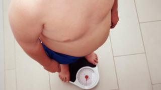 An overweight child stands on scales