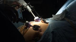 Laparoscopic operation