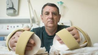 O britânico Chris King depois do bem sucedido transplante duplo de mãos