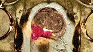 MRI scan of the prostate