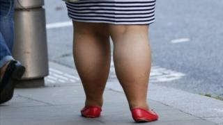 overweight legs
