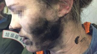 Woman's face with burn marks