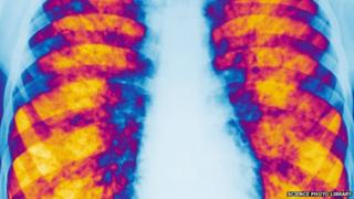 Cystic fibrosis - xray of lungs of patient with the condition