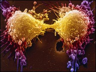 Cancer cell dividing, SPL