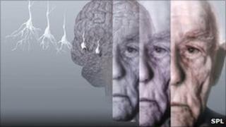 Conceptual computer artwork showing the brain of an elderly man affected by Alzheimer's disease