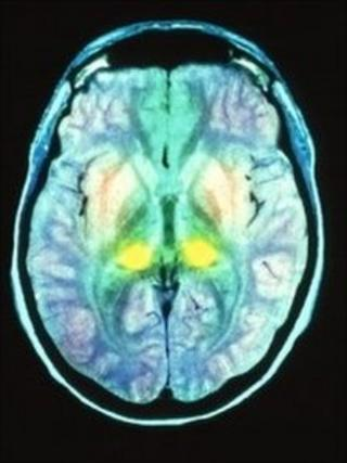 MRI of CJD brain scan