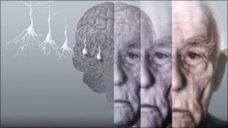 Alzheimer's graphic