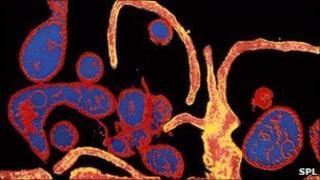 Measles virus