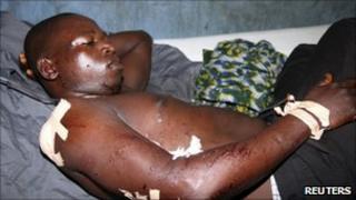 Man injured by bomb blasts in Bauchi (30 May 2011)