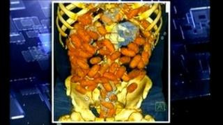 Digital image of cocaien capsules inside the body of the alleged smuggler