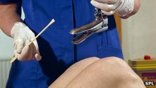 Nurse about to perform a cervical smear test