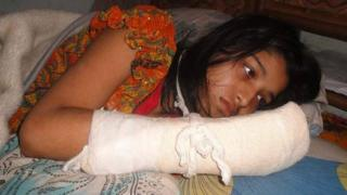 Hawa Akther Jui recovering from the attack