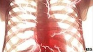 A chest X-ray showing the heart and arteries.