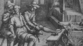 Fabry von Hilden: cauterization