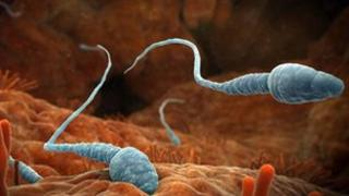 Sperm in the Fallopian tube