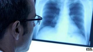 Doctor looking at lung x-ray