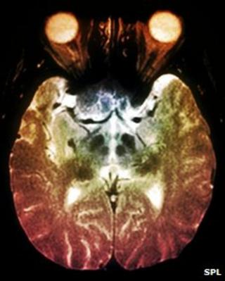 The brain scan of a Parkinson's disease