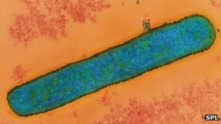 Anthrax bacterium