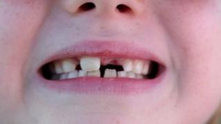 The gap-toothed smile of a 7-year-old child