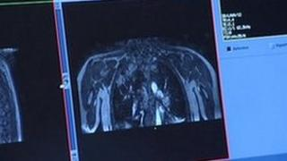 A chest scan on a computer screen