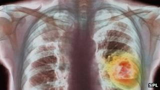 X-ray showing lung cancer