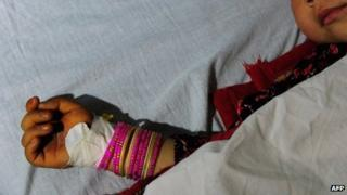 A five year old Afghan girl who was allegedly raped by a 22 year old man lies in a hospital bed