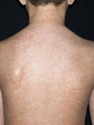 Boy with measles rash