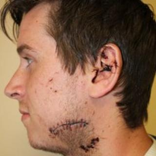 Marcus Fisher with stitches after the attack
