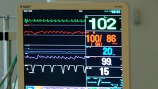 Intensive care unit monitor